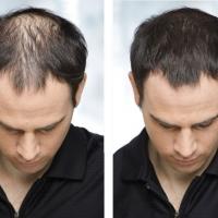 Загуститель для волос Caboki оптом